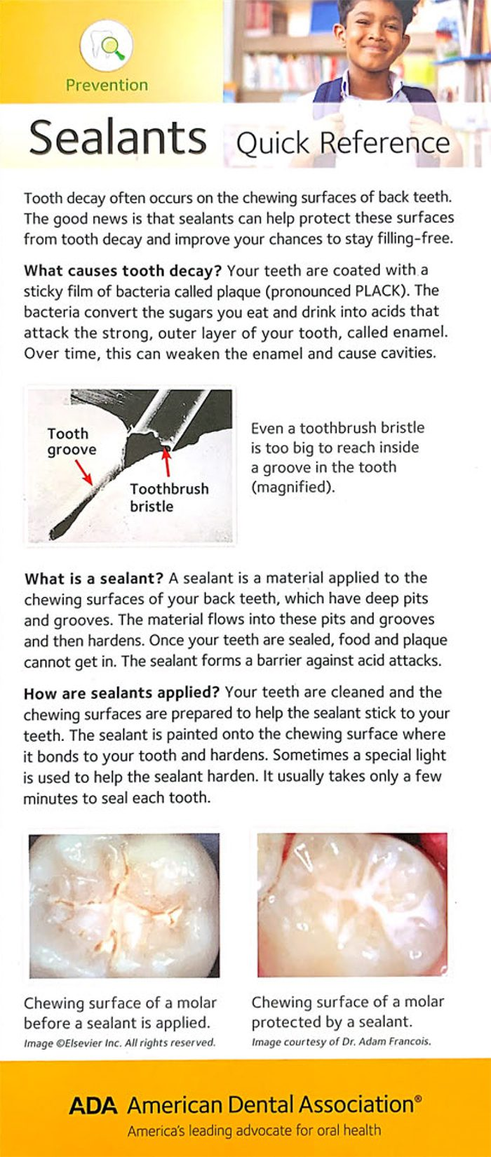 The cover of the Sealants brochure showing sealants in the grooves of a tooth.